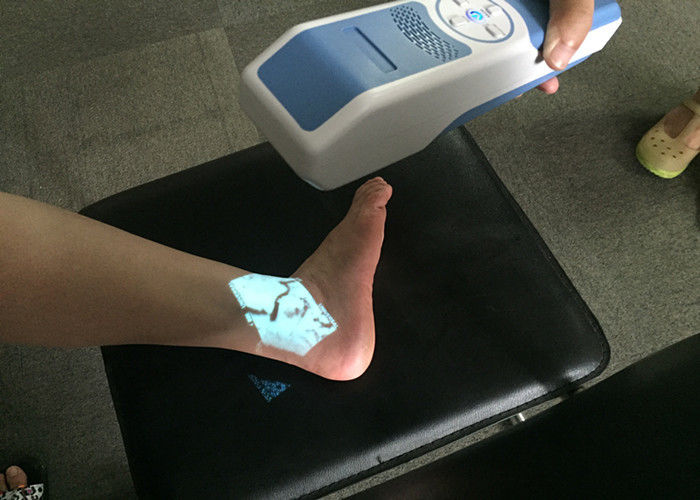 5 Color Selection Fast Focus Vein Infrared Vein Scanner Vein Locator Device Projection With 850nm Wavelength