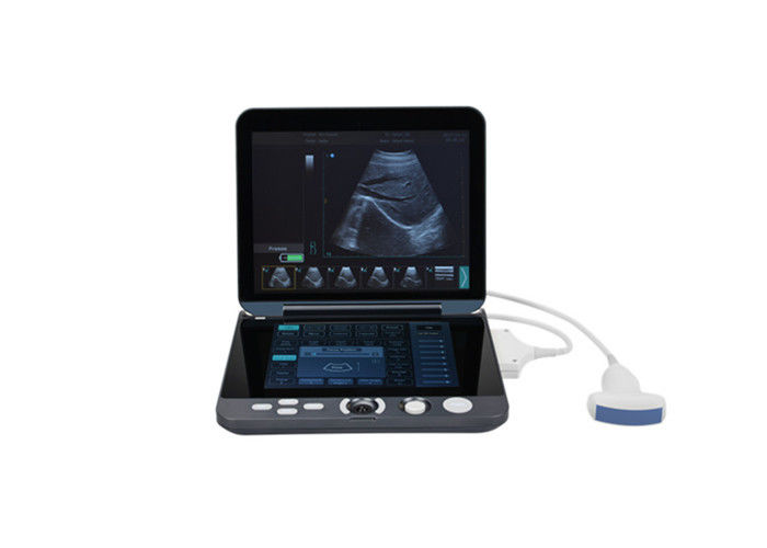 Digital Portable Mobile Laptop Ultrasound Scanner With Touch Sreen Keyboard For Image Diagnostics
