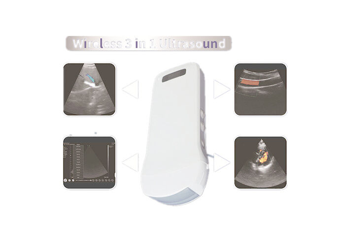 Color Doppler Sonography Color Doppler Ultrasound Scanner With Built-in WiFi Signal Wireless Charging 2.5MHz~10MHz Freq