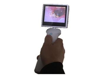Layar LCD 3,5 Inch Digital Video Otoscope THT Camera untuk Telinga Hidung Tenggorokan dengan Baterai Lithium